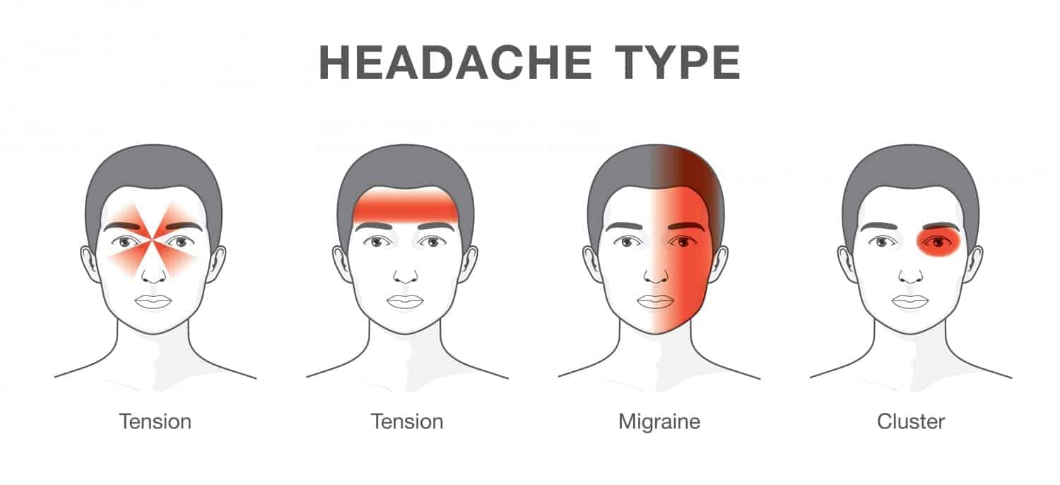Acupuncture and traditional Chinese medicine treatment for migraine